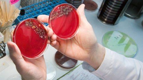 """Бактериологические исследования, Лаборатория """"ЦМЭИ"""""""
