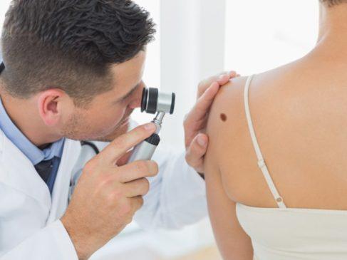 Родинки на коже – опасно или нет? Разбираемся вместе с дерматологом лечебно-диагностического центра «ЦМЭИ»