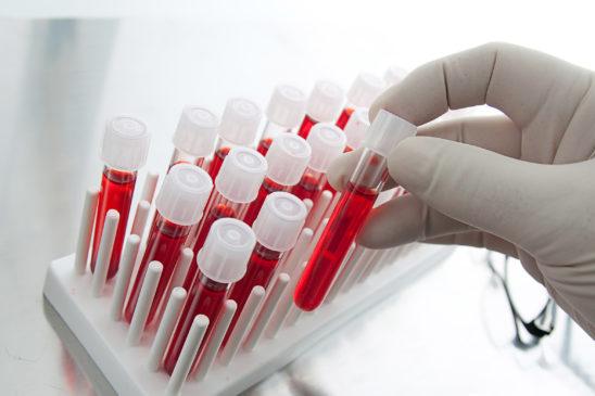 Лабораторная диагностика вирусных гепатитов
