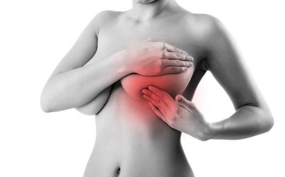 Мастопатия: причины, симптомы и лечение - 5 моментов, на которые должна обратить внимание каждая женщина изоражения