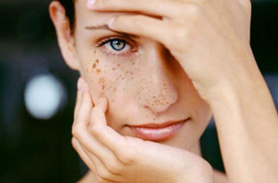 Пигментация на коже лица и тела. Опасно ли это? Какие меры стоит предпринять?