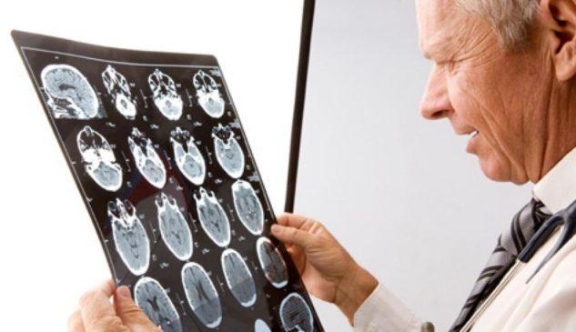 Какие заболевания консультирует хороший невролог в Харькове?