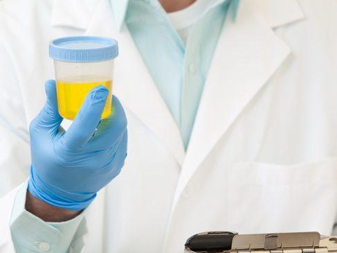Клинический анализ крови и мочи