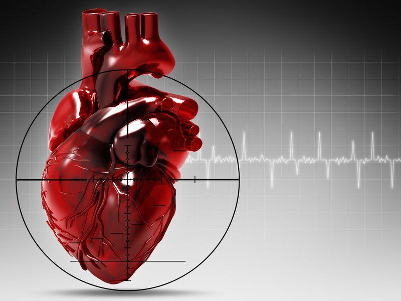 Инфаркт миокарда. Признаки. Первая Помощь.
