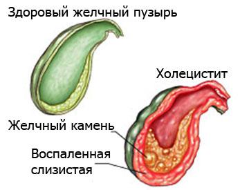 Панкреатин. Диагностика и лечение
