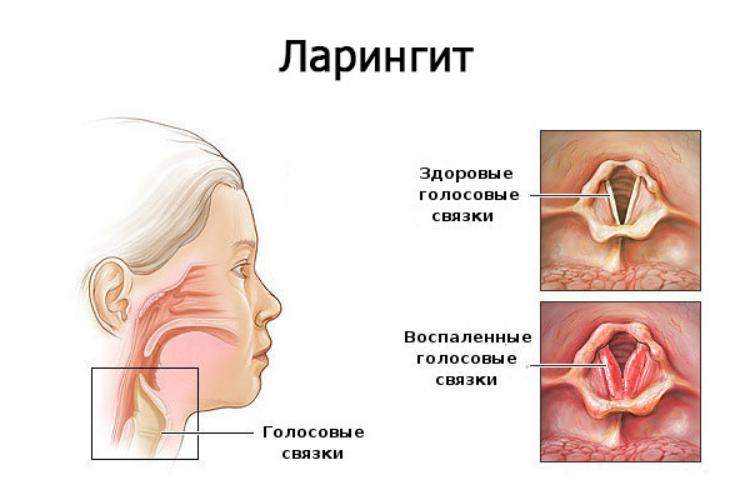 Ларингит. Лечение в Харькове