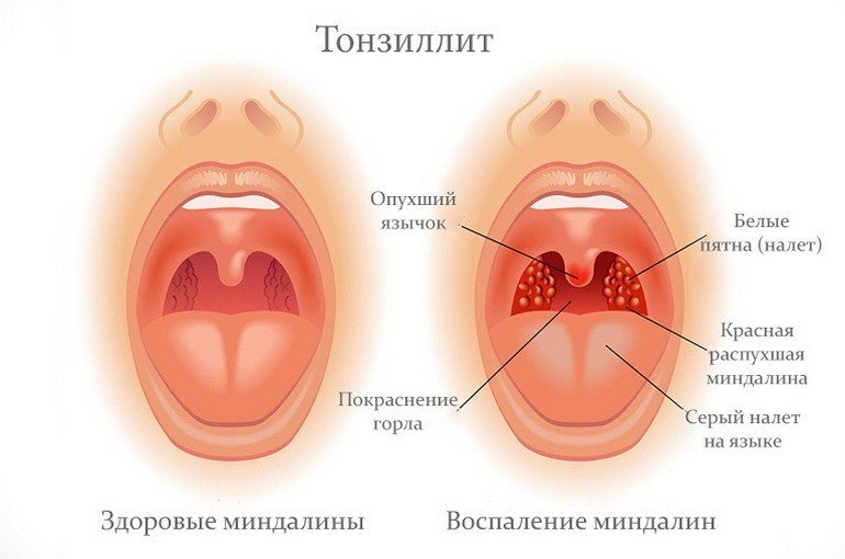 Тонзиллит. Лечение в Харькове