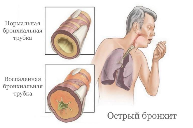 Лечение бронхита в ЦМЭИ