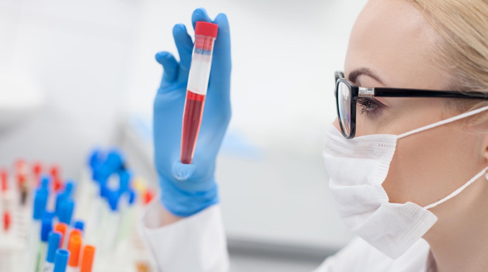 Анализ на вирус крови в Харькове