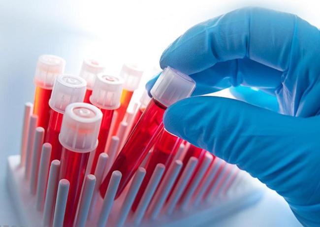 Биохимический анализ крови. Расшифровка результатов