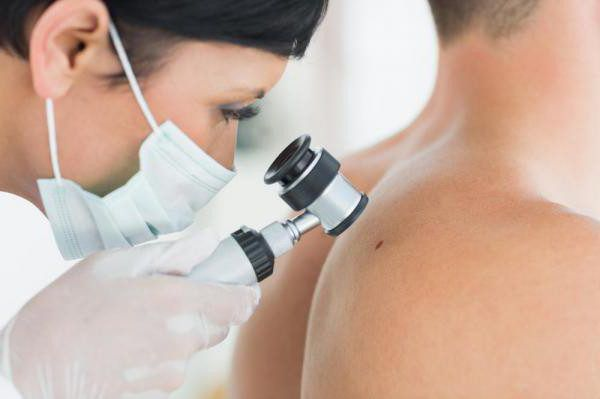 Хирургия: удаление бородавок, папилом, родинок, атером и др.