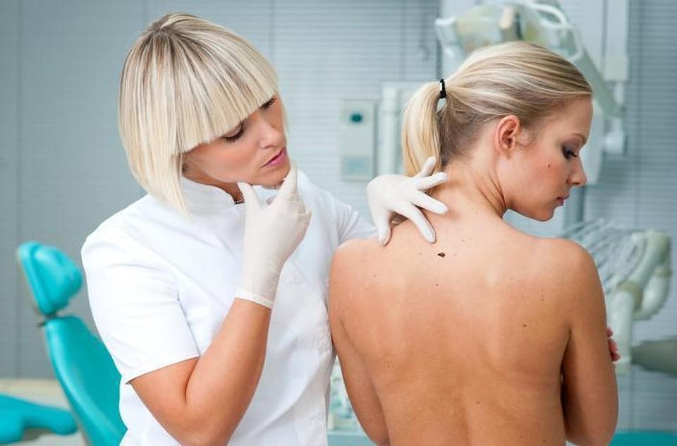 Удаление бородавок и папиллом криометодом в филиале ЦМЭИ