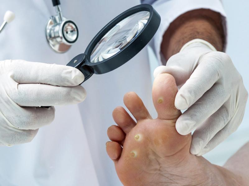 Криотерапия в ЦМЭИ. Удаление бородавок и папиллом
