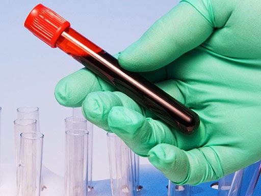 Анализы на вирусные инфекции