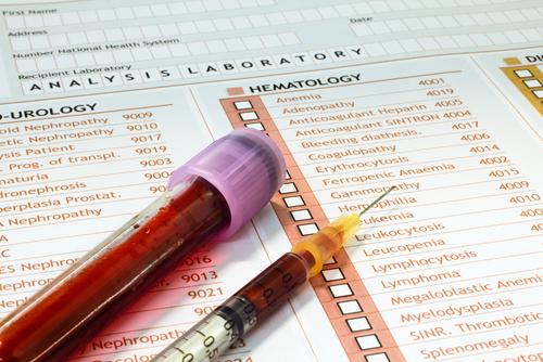 Клинический анализ крови и мочи. Как проводится? Что показывает?