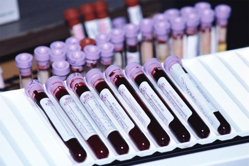 Иммунологическое исследование крови