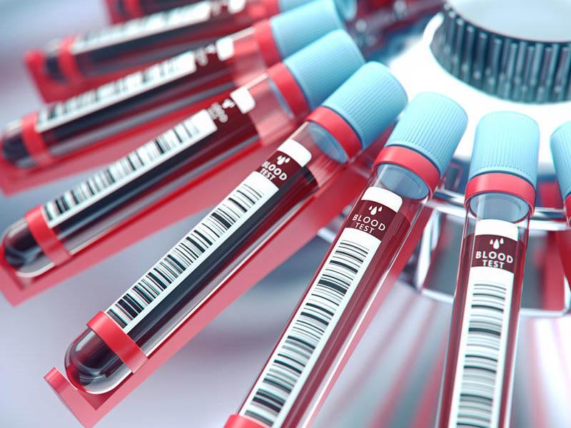 Анализ на антитела IgG к дифтерийному токсину