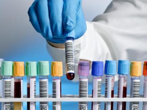 Гинекологические инфекции. Анализы на половые инфекции. Что нужно знать?