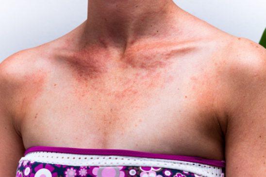 Аллергия на солнце. Что это? Как защитить себя?