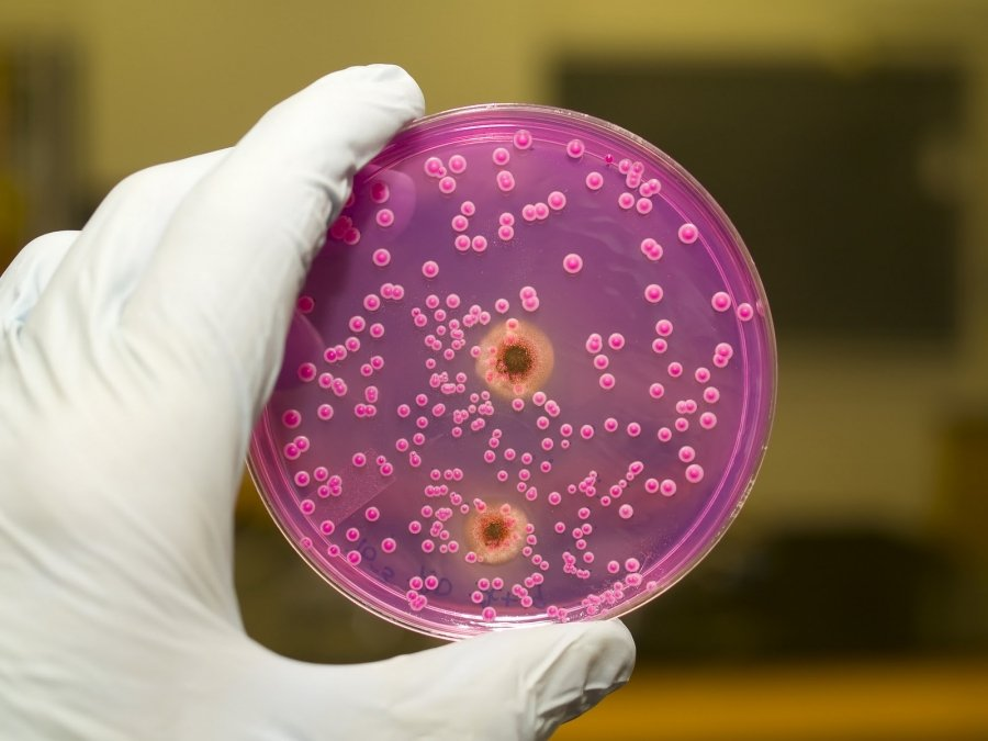 Об интимном. Инфекции, передающиеся половым путем (ИППП)