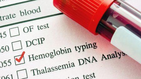 Высокий и низкий гемоглобин