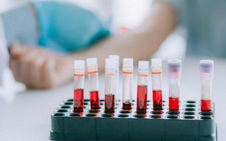 Тромбоциты. Общий анализ крови