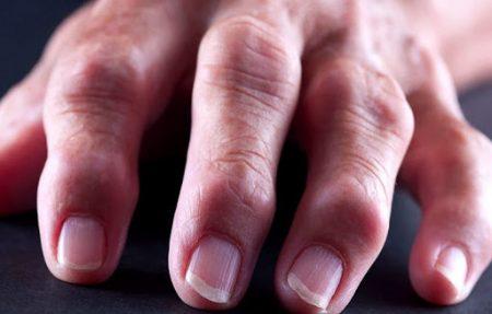 Какие суставы чаще поражает артрит?
