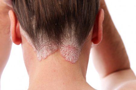 Псориаз волосистой части головы. Что это? Как лечить?