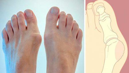 Шишки і кісточки на ногах