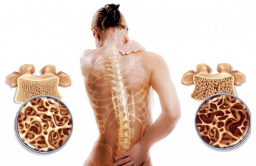 Как вовремя выявить остеопороз?