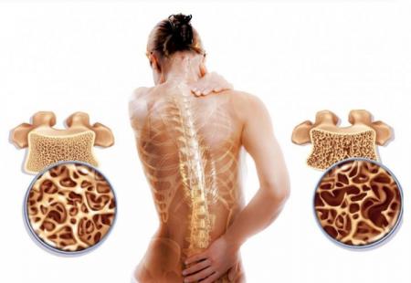 Як вчасно виявити остеопороз?